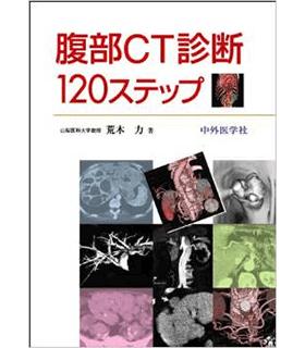 腹部CT診断120ステップ