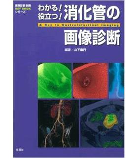 わかる!役立つ!消化管の画像診断 (画像診断別冊KEY BOOKシリーズ)