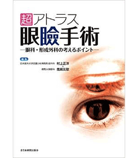 超アトラス眼瞼手術―眼科・形成外科の考えるポイント―