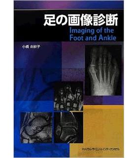 足の画像診断