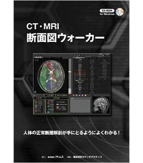 CT・MRI 断面図ウォーカー
